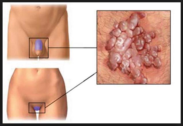 Infecção vaginal por fungo candida ou candidíase. Masculino ou Feminino