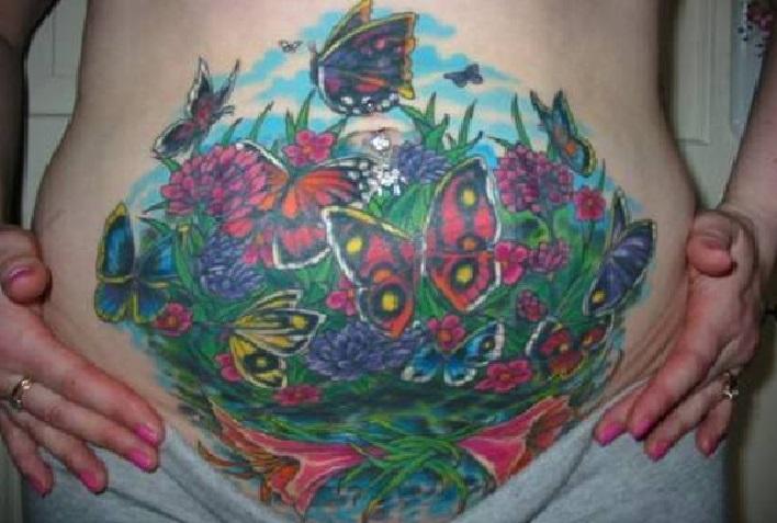 Tatuagem Para Apagar Estrias - Como Funciona e Fotos