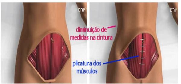 Cirurgia Lipoescultura - Como é Feita, Para Que Serve