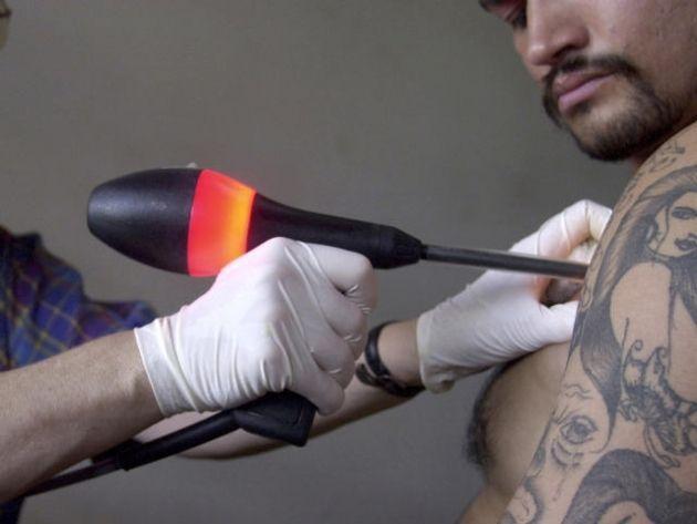 Laser de Tratamento Para Remover Tatuagem – Como Funciona e Preço