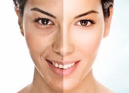 tratamento-facial