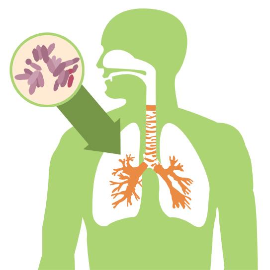Tuberculose - Causas, Sintomas e Tratamento