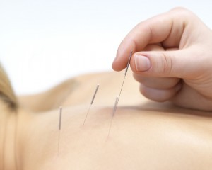 acupuntura-agulha