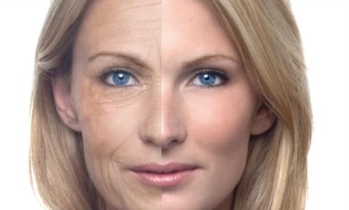 Como Retardar e Melhorar o Envelhecimento da Pele – Dicas