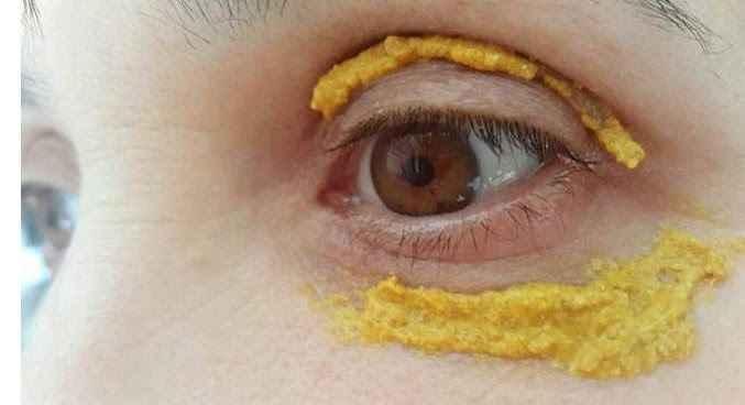 olheiras-tratamento-caseiro-abacaxi