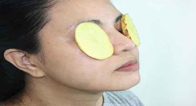 olheiras-tratamento-caseiro