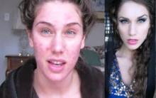 Problemas de Acne Cística – O Que É e Dicas de Maquiagem