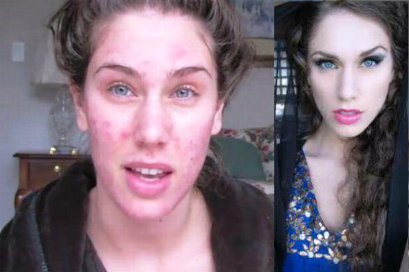 maquiagem-acne-cistica