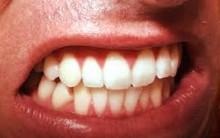 Como Acabar com o Ranger dos Dentes Noturno – Bruxismo – Dicas de Como Fazer