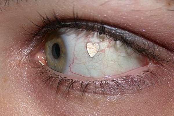 Implante de Jóias Nos Olhos – O Que É e Riscos