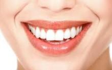 Alimentos que Prejudicam os Dentes- Dicas