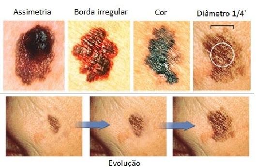 Câncer de Pele - Sintomas, Causas e Prevenção