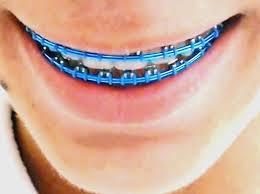 Moda Aparelho Dentário Falso – Riscos Para a Saúde