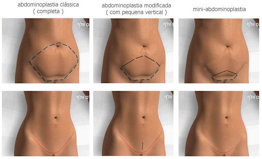 procedimento-abdominoplastia