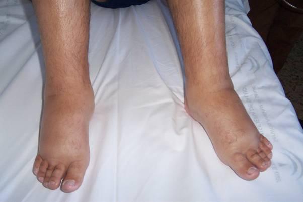 Inchaço Nas Pernas - Causas