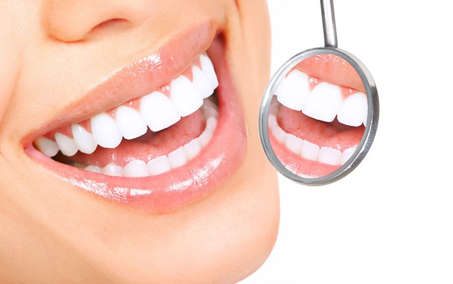 Clareamento Dental - Mitos e Verdades