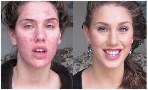 acne-cistica