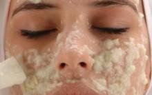Tratamento Caseiro para Acne – Como Fazer e Dicas