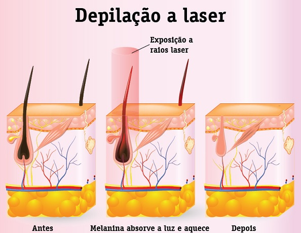 Depilação a Laser -