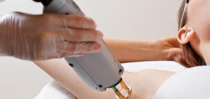 Depilação a Laser - Benefícios e
