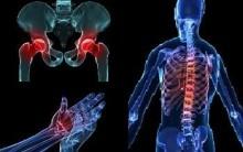 Osteopenia – O que é – Como Tratar