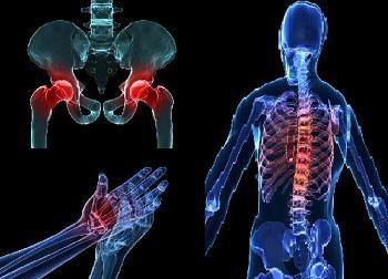 Osteopenia -