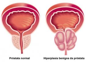 Hiperplasia Benigna da Próstata. Situação da Próstata