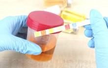 Urina Cores Diferentes – O Que Cada Uma Significa