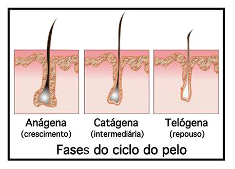 Fotodepilação-ciclo