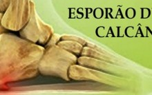 Esporão de Calcâneo –  Causas, Sintomas, Tratamento e Vídeo