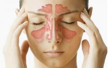 Sinusite na Gravidez – Como Tratar Naturalmente