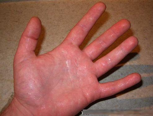 Suor-nas-Mãos