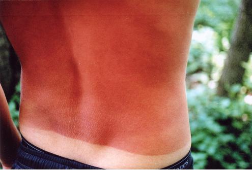 Escaldão Solar – O Que é, Como Prevenir e Tratar