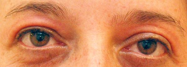 Olhos Inchados Depois da Festa – Causas e Como Prevenir