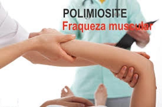 Polimiosite – O Que É, Sintomas e Tratamento