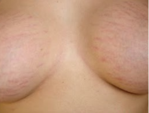 Seios-Firmes-estrias