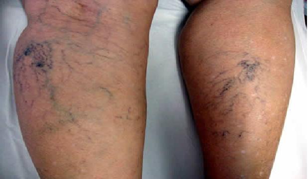 dores nas pernas varizes