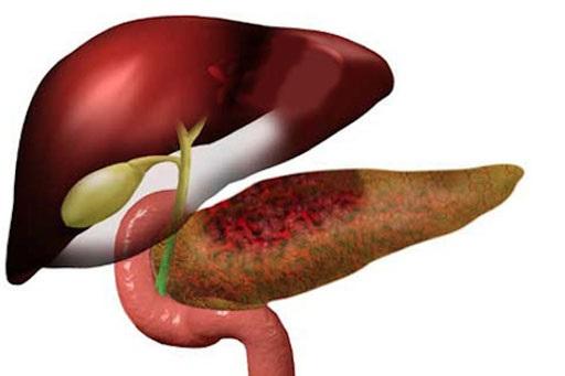 Pancreatite -