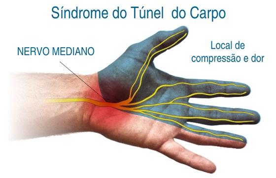 Síndrome do Túnel do Carpo – Sintomas e Tratamento