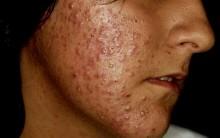 Suco Contra Acne Detox – Como Preparar