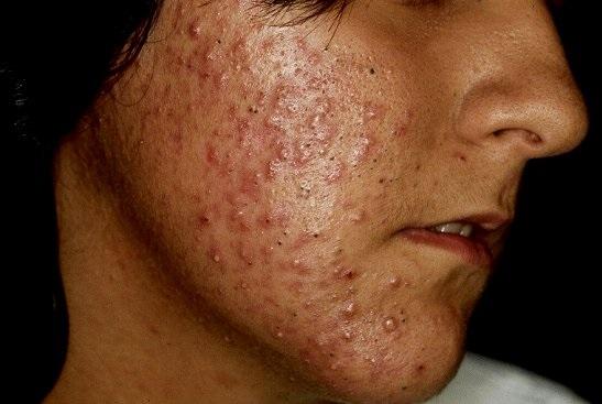Suco Contra Acne - Como Fazer