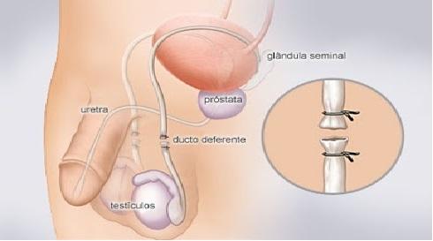 Vasectomia - O Que é, Vantagens e Desvantagens