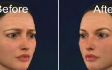 Brow Lift Cirurgia Plástica – Como é Feita