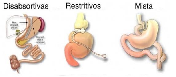 Cirurgia Bariátrica .Pré-Requisitos  Cuidado