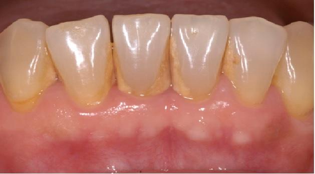 Como Remover Placa Bacteriana Dos Dentes - Dicas Caseiras