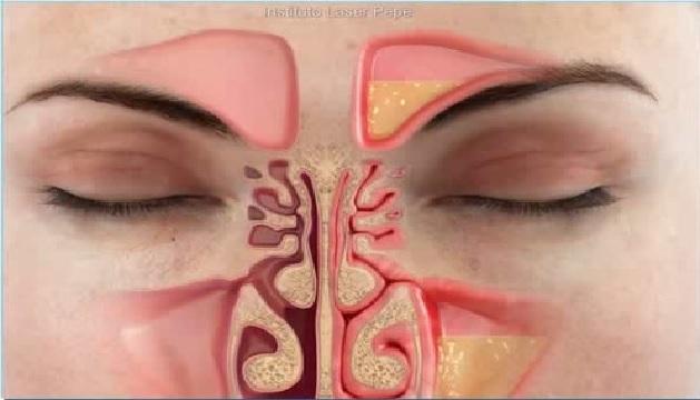 Sinusite e Rinite  Como Cuidar Receita Caseira