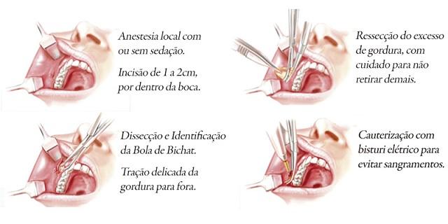Bichectomia  Cirurgia Afina