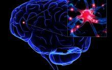Demência Com Corpos de Lewy – O Que É e Sintomas