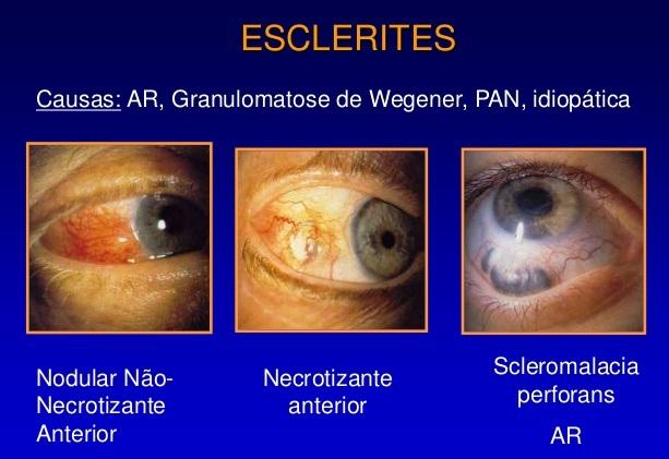 Esclerite - O Que É - Sintomas