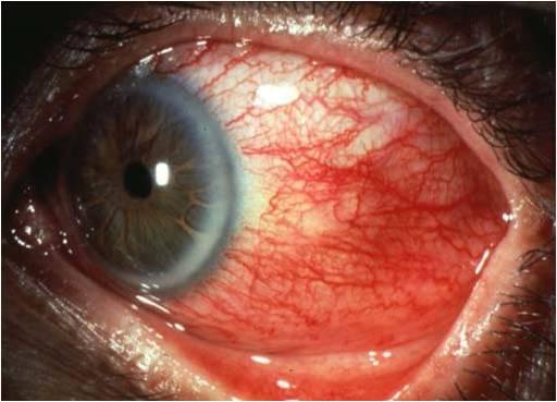 Esclerite nos olhos - O Que É - Sintomas e Causas